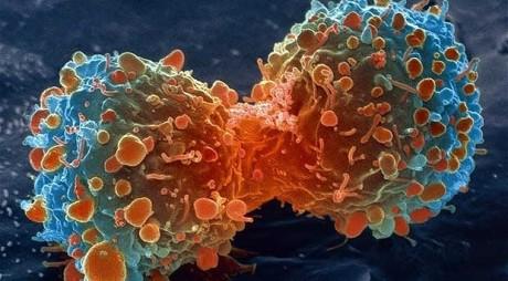 STUDIU. Apariția cancerului, un ghinion