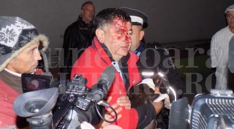 Poliţia a deschis DOSAR PENAL în cazul accidentului provocat de deputatul Mircia Muntean