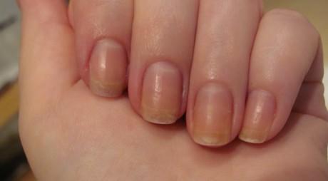 Remedii naturale pentru unghii îngălbenite