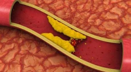 Trei alimente la îndemână care elimină grăsimea din sânge