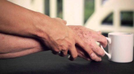 Hunedoara | Numărul bolnavilor de Parkinson s-a dublat