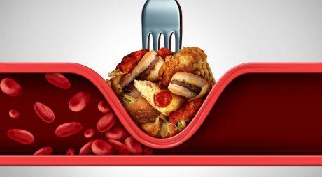 Colesterolul rău, modalitate nouă de a-l reduce